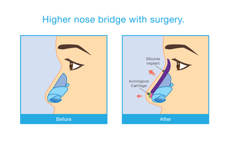 Before and after of woman face making nose bridge higher with surgery.