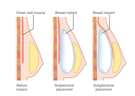 유방 삽입물 삽입 일러스트