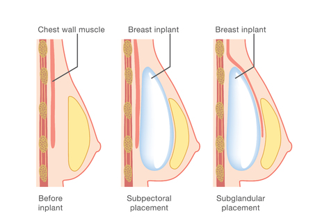 Breast implant insertion Vectores