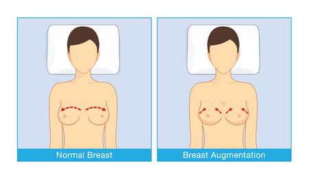 通常乳房の形状や乳房インプラント女性の形の顔を仰向けで横になっているとき。美容整形についての図。