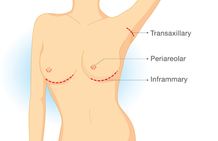 Incision points in breast implant surgery. Illustration about cosmetic surgery.