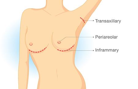 senos: puntos de incisión en la cirugía de implantes mamarios. Ilustración sobre la cirugía estética. Vectores