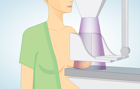 Woman get mammograms for breast cancer screening. Illustration about protection breast cancer with medical technology.