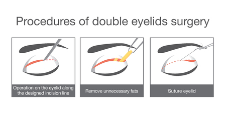procedures: Procedures of double eyelids surgery. Illustration about cosmetic surgery.