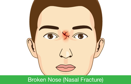 Broken nose on facial of man. Illustration about medical. Illustration