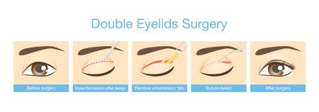 二重まぶた手術の手順。美容整形についての図。  イラスト・ベクター素材