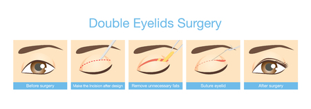 eyelids: Procedures of double eyelids surgery. Illustration about cosmetic surgery.