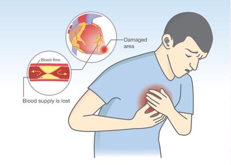 angina: El hombre tiene los primeros síntomas de ataque al corazón. El flujo de sangre se bloquean por graso que es causa de pecho e infarto de miocardio. Cuidado de la salud y de la ilustración médica.
