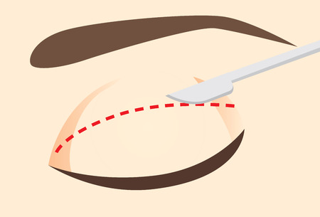 Knife on the eyelid along the designed incision line. Illustration about double eyelid surgery.