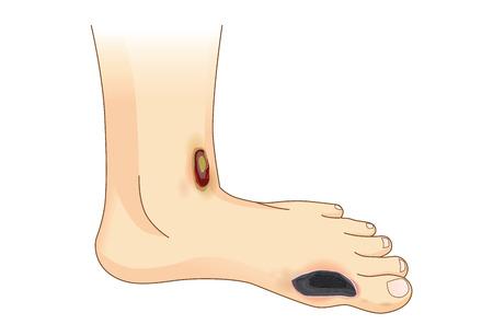 糖尿病足の痛み、潰瘍。足側の皮膚の傷を表示します。糖尿病の症状についての図。  イラスト・ベクター素材