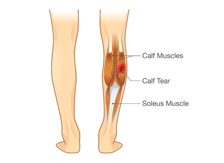inflammatory: Calf muscle tear. Illustration about leg Injury from inflammatory. Illustration