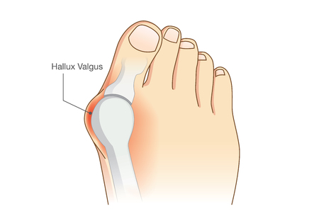 toe: Abnormal of foot shape from deformity joint connecting the big toe. Problem of foot form wearing high heel make.