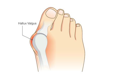 Anormal de la forma del pie de la articulación que conecta la deformidad del dedo gordo. Problema de la forma del pie que lleva maquillaje de alta talón. Ilustración de vector