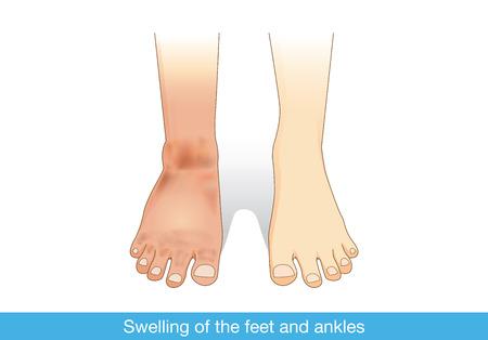 treats: Hinchazón de los pies y los tobillos de la lesión infectada o al otro. Ilustración sobre la medicina.