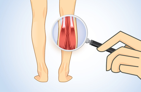 Zoom in Calf Muscle of human with magnifier for check Muscular System. Illustration about medical and health care.