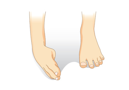 sprain: Ankle sprain while walking. Illustration about medical and good foot care.
