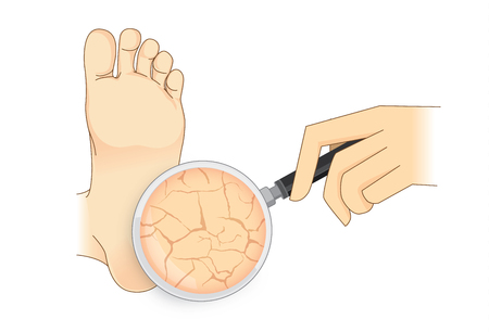 Zoom in cracked heel with magnifier on isolated. Illustration about beauty foot skin.