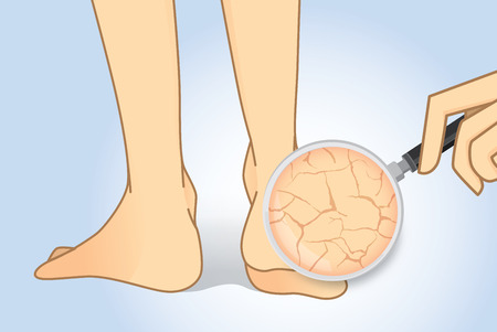 Zoom in cracked heel with magnifier. Illustration about beauty foot skin.