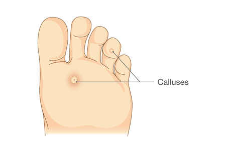 rub: Small circles dead skin on the bottom of soles and toes. Calluses. Illustration about symptoms and pain on foot. Illustration