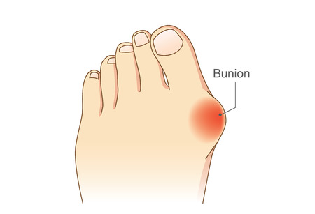 Bunion at sides of foot. Bone and skin on the sides of joint of the big toe make abnormal foot shape. Common problem form wearing high heel.