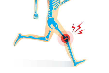Injury of knee bone and leg while human running. Illustration about medical and sport.