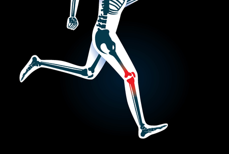 human leg: Injury of knee bone and leg while human running. Illustration about medical and sport.