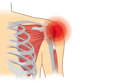 Human shoulder muscles and joints have a red signal. Illustration about chronic pain. Illustration