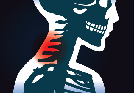 Human neck bone have a red signal meaning to have pain symptom. This illustration about medical and physical.