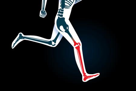 hueso humano pierna y el pie mientras está en funcionamiento tienen una señal en rojo. Esta ilustración acerca de los síntomas de dolor en la pierna del movimiento o correr.