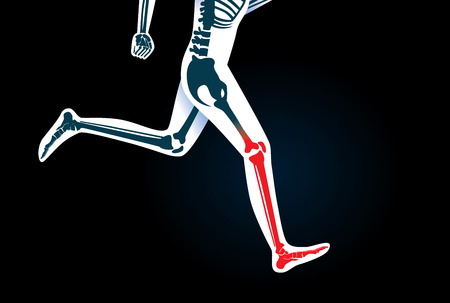 movement: Human Leg bone and foot while run have a red signal. This illustration about pain symptom on leg from movement or running.