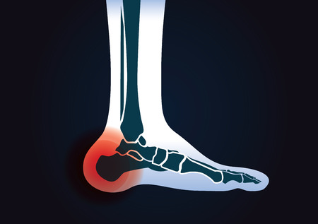 human leg: Red signal at heel area. This illustration about human foot injury. Illustration