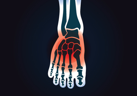 Human foot bone have a red signal. This illustration about foot pain. Vector Illustration