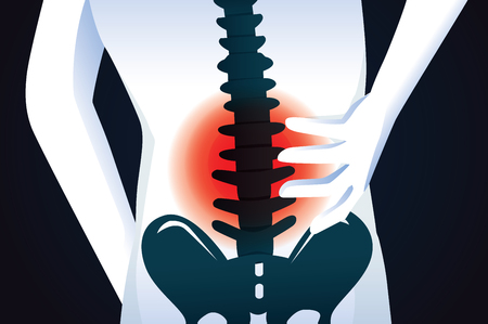 bruised: Red signal at spine area. This illustration about human back pain.