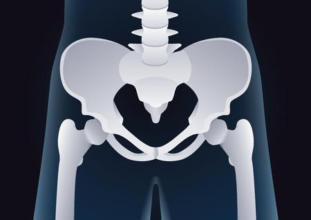 forme et sante: forme normale de l'os pelvien humaine dans le concept X-ray. Illustration à propos médicaux et de santé.