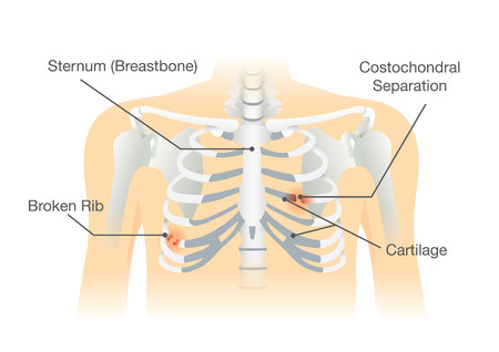 Human rib bone fractures fracture. Illustration is description of body injury. Illustration