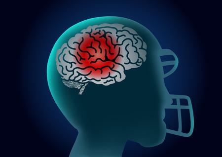 Silhouet Brain van Amerikaanse voetballer heeft een rood signaal. Illustratie over letsel van atleet