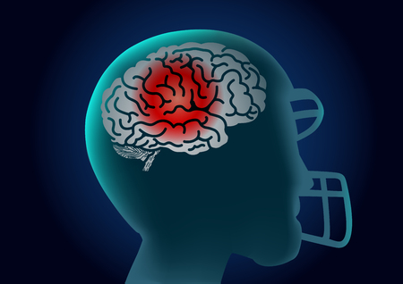 Silhouette Brain of American football player have a red signal. Illustration about injury of athlete