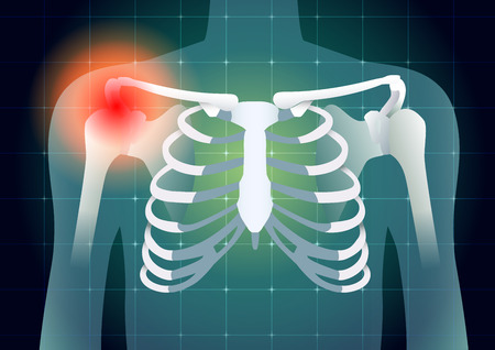 Shoulder bone have a red signal on medical monitor background. Illustration about diagnose body injury. Illustration
