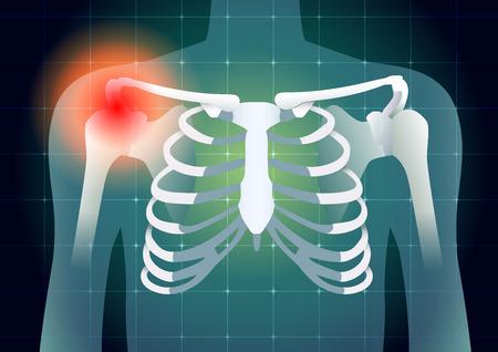 Schulterknochen haben ein rotes Signal auf medizinischen Monitor Hintergrund. Illustration zur Diagnose Körperverletzung.