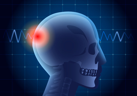 occurs: Inside of human head have a red signal on pulse monitor background. Illustration about medical diagnosis. Illustration