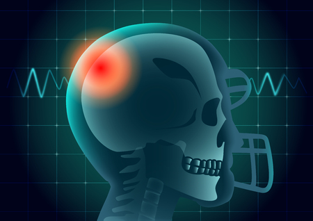 Skull of American football athlete have a red signal on physical monitor background. Illustration about medical diagnosis. Illustration
