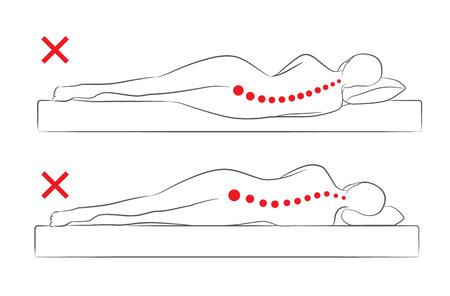 La alineación incorrecta de la columna cuando duerme en la posición de dormir lateral.