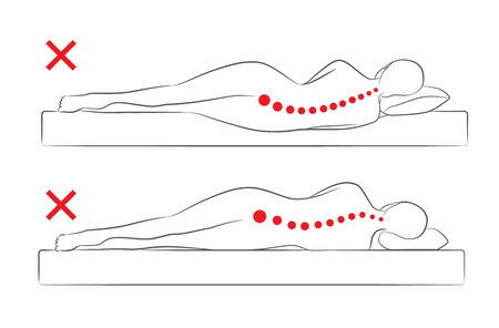 woman lying in bed: The incorrect spine alignment when sleeping by on the side sleeping position.