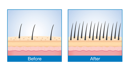 before: Number of Hair on scalp before and after of treatment hair loss. Illustration
