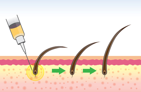 Hair follicle treatment of people have a hair loss problem with medical method.