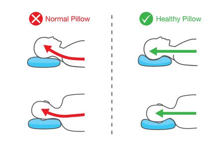 Illustration de la colonne vertébrale des personnes lorsqu'elles dorment sur un oreiller normal et un oreiller sain. Vecteurs