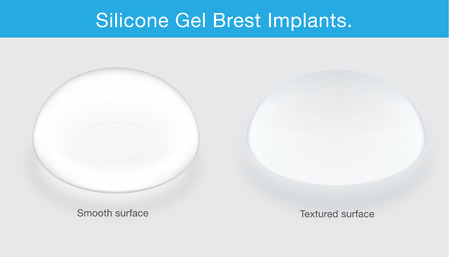 breast implant: Difference of breast implant texture. This illustration about cosmetic surgery. Illustration