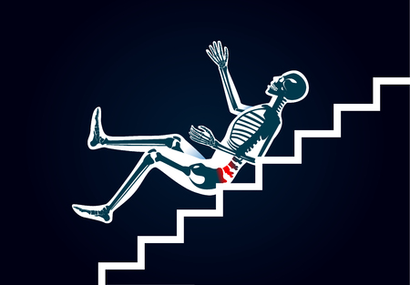 Human have back pain from slip down stairs. Illustration about cause of body injury. 일러스트