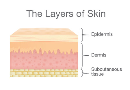 The Layer of Human Skin in vector style and components information. Illustration about medical and health.
