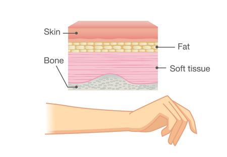 Anatomie de la peau humaine, couche et bras isolés sur blanc. Idéal pour l'illustration médicale et la science. Vecteurs